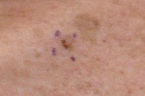 Orleans Dermatology And Laser Therapies Skin Cancers And